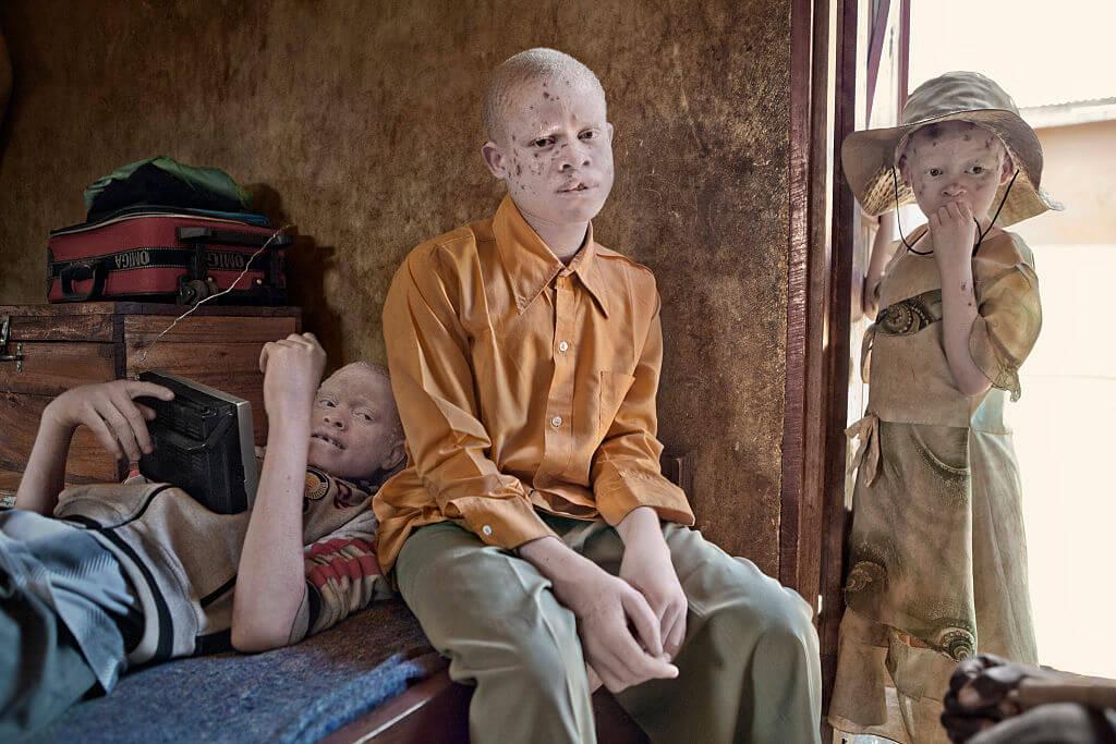 h_bm_albino_refugee_02597670-29522-75093.jpg
